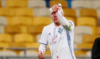 Krwawa kontuzja Domagoja Vidy w meczu Ligi Europy (galeria)