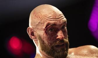 Boks. Tyson Fury - Otto Wallin. Krwawa bitwa w Las Vegas (drastyczne zdjęcia)